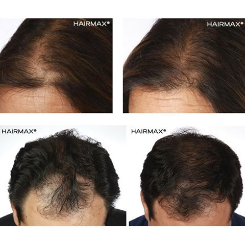 Hairmax Laser Before After