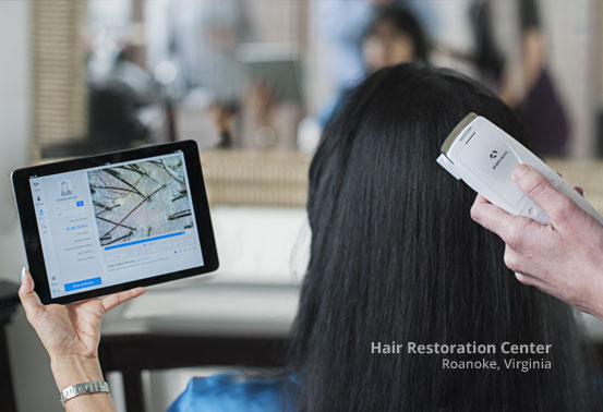 Hair Scalp Treatment Products Roanoke Virginia