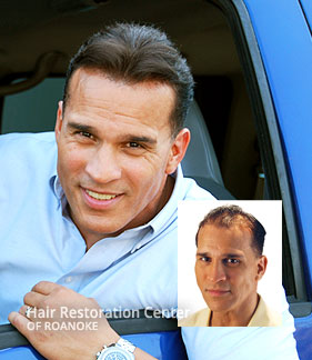 Mens Hair Pieces Baldness Roanoke Virginia
