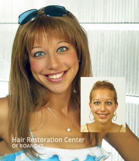 Women's Hair Loss Replacement Roanoke Virginia